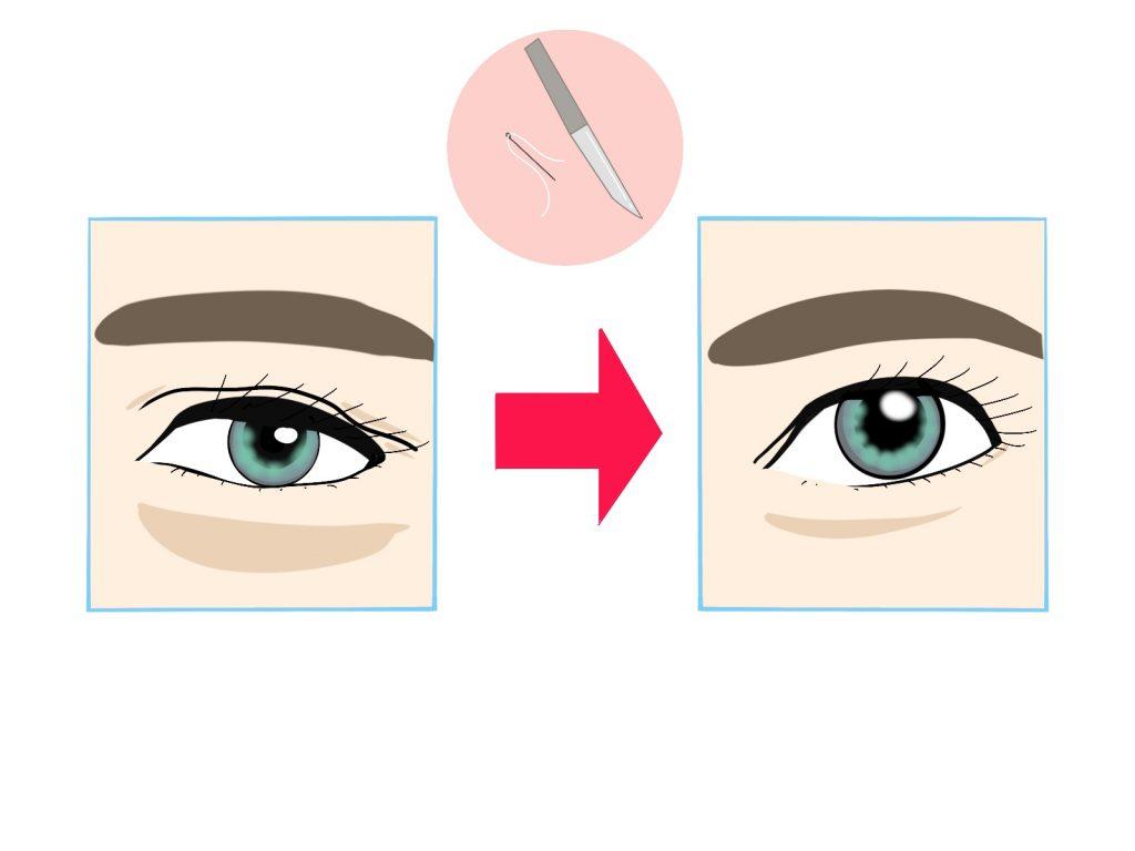 眼瞼下垂手術とは