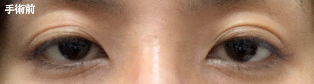 手術前 眼瞼下垂