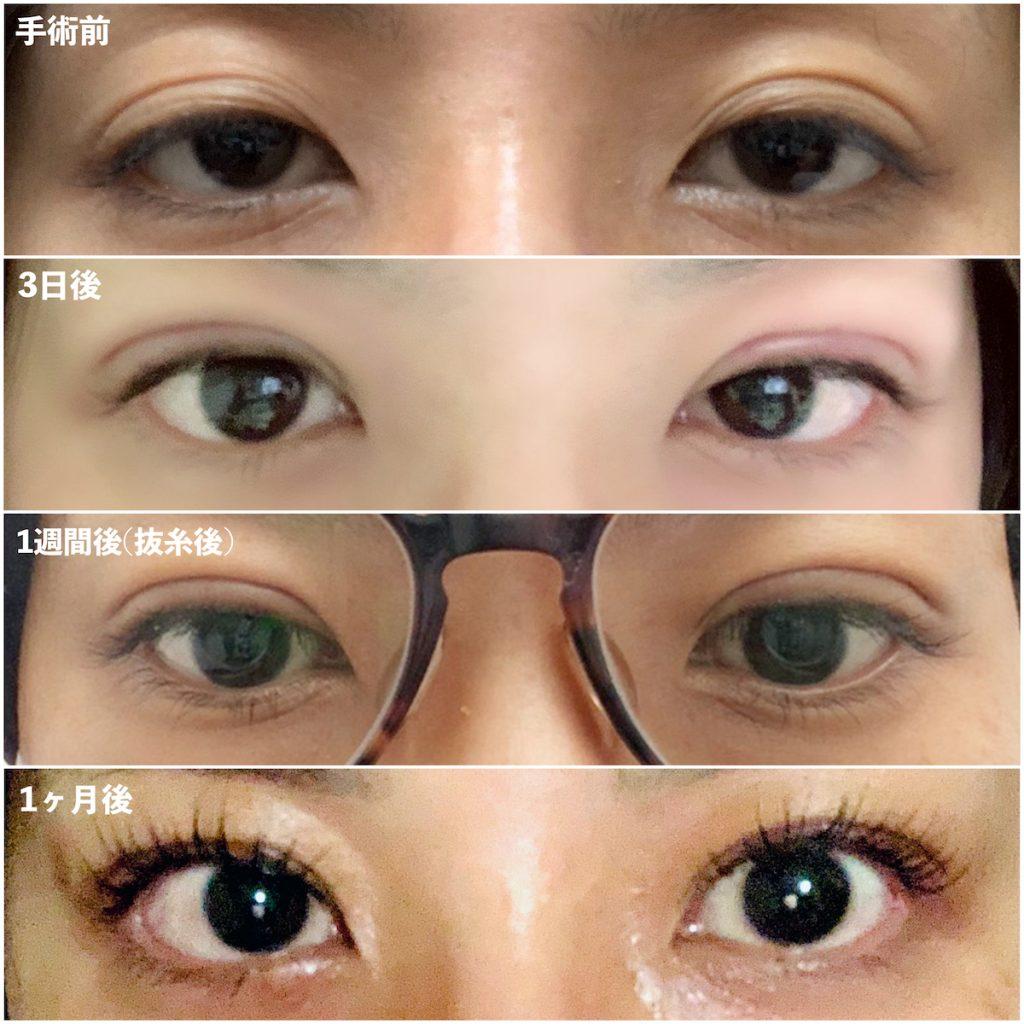 眼瞼下垂手術経過