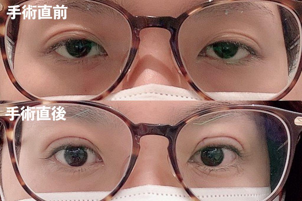 眼瞼下垂ビフォーアフター