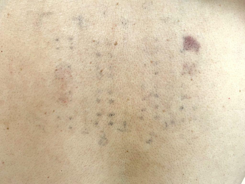 金属アレルギー検査結果の背中
